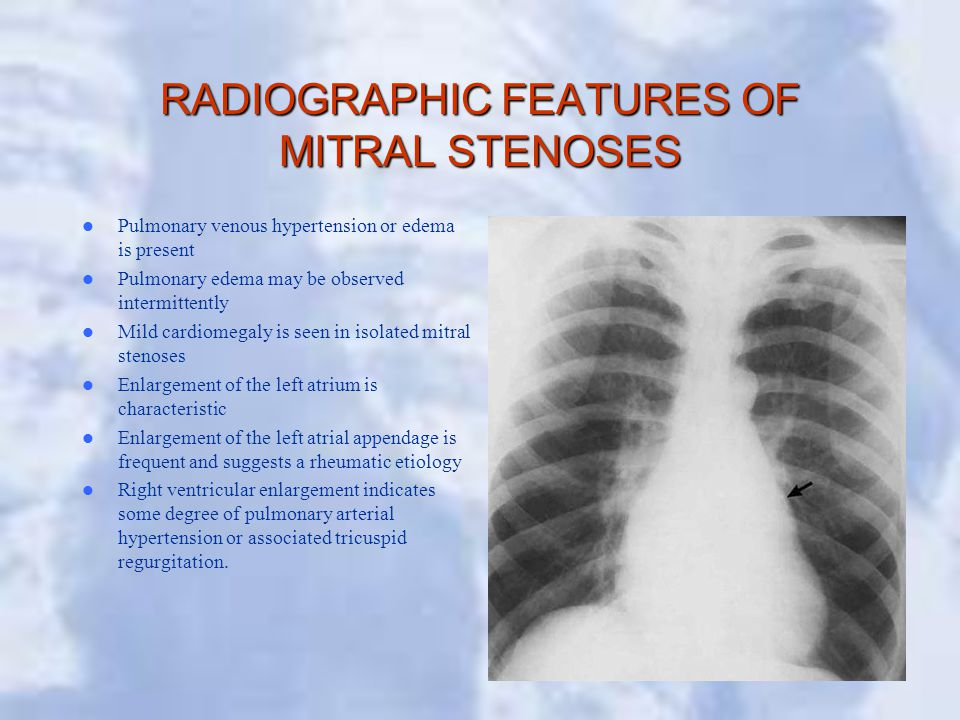 RADIOGRAPHIC FEATURES OF MITRAL STENOSES
