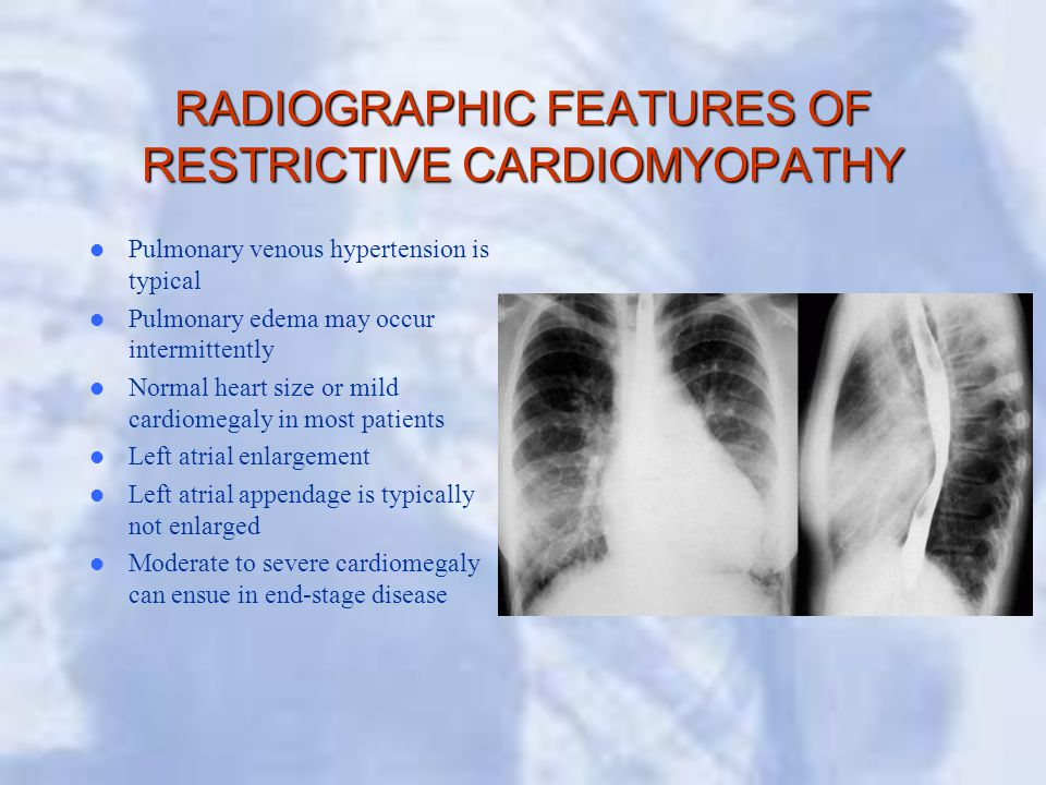 RADIOGRAPHIC FEATURES OF RESTRICTIVE CARDIOMYOPATHY