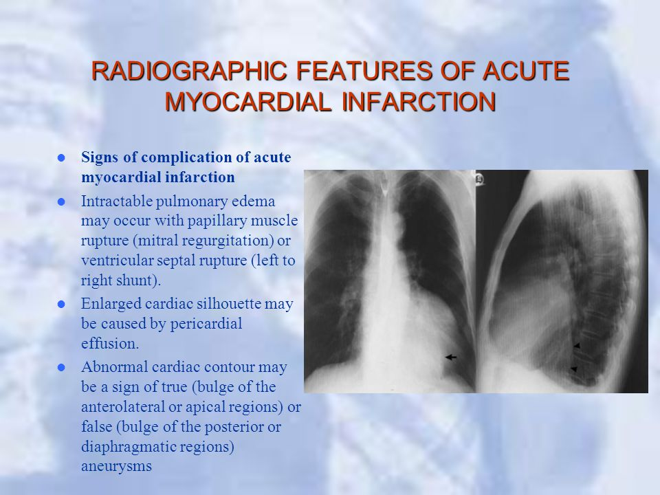 RADIOGRAPHIC FEATURES OF ACUTE MYOCARDIAL INFARCTION