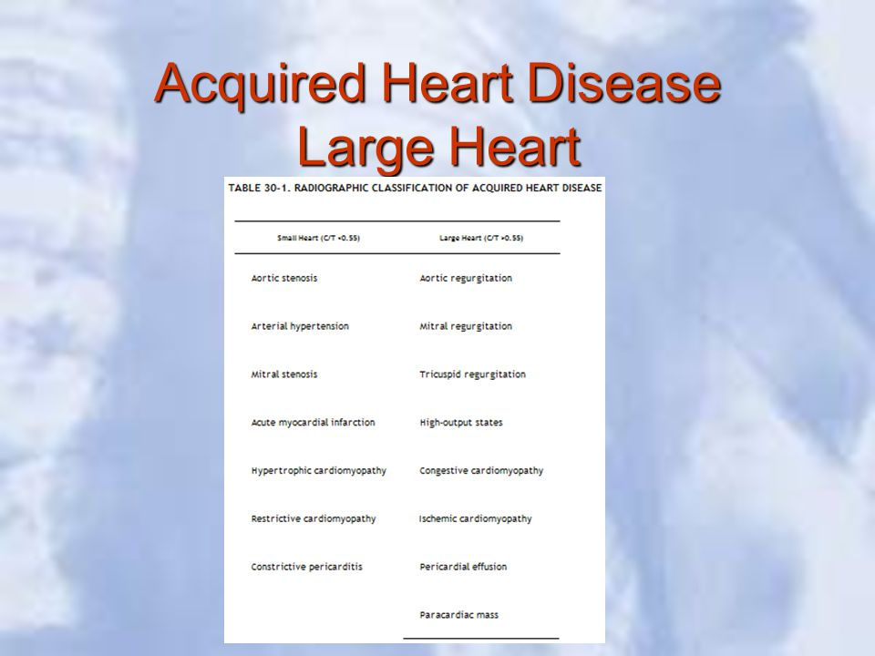 Acquired Heart Disease Large Heart