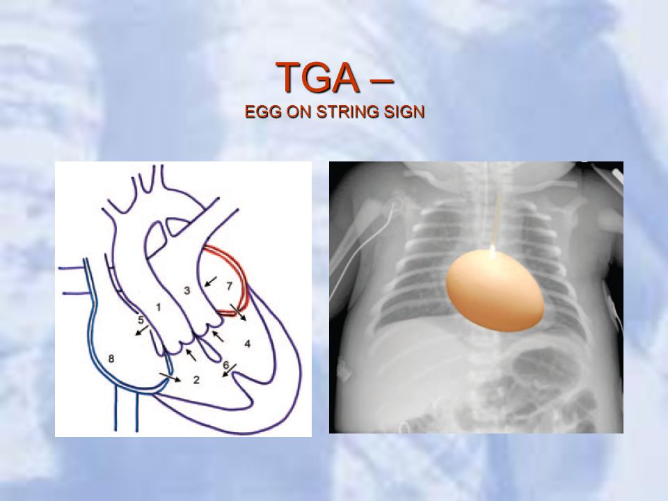 TGA – EGG ON STRING SIGN