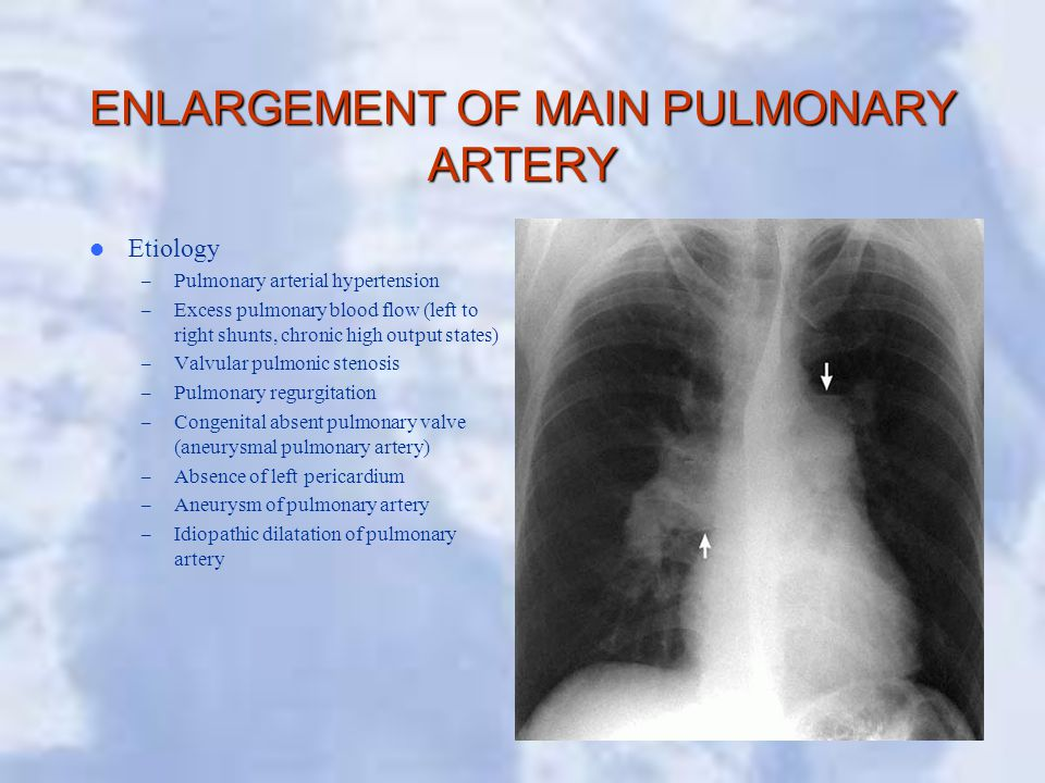 ENLARGEMENT OF MAIN PULMONARY ARTERY