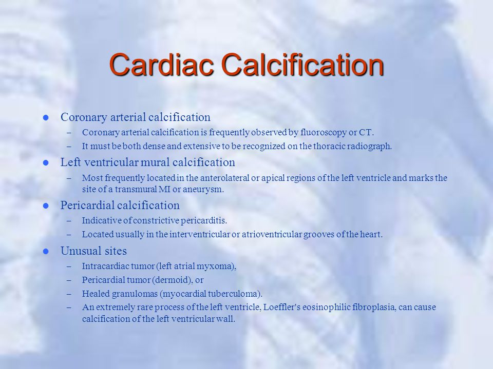Cardiac Calcification