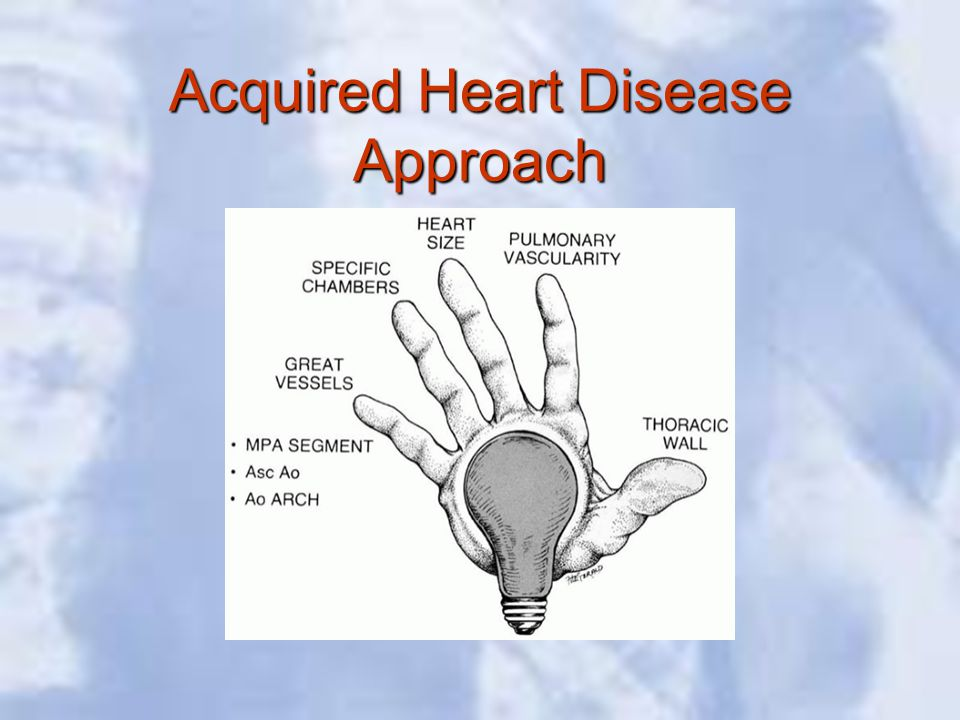 Acquired Heart Disease Approach