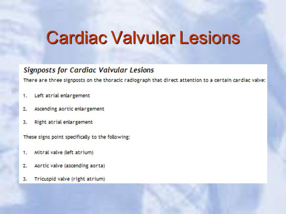 Cardiac Valvular Lesions