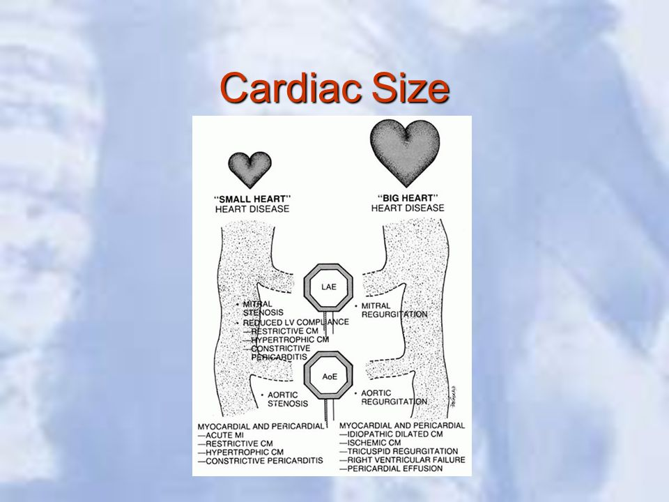 Cardiac Size