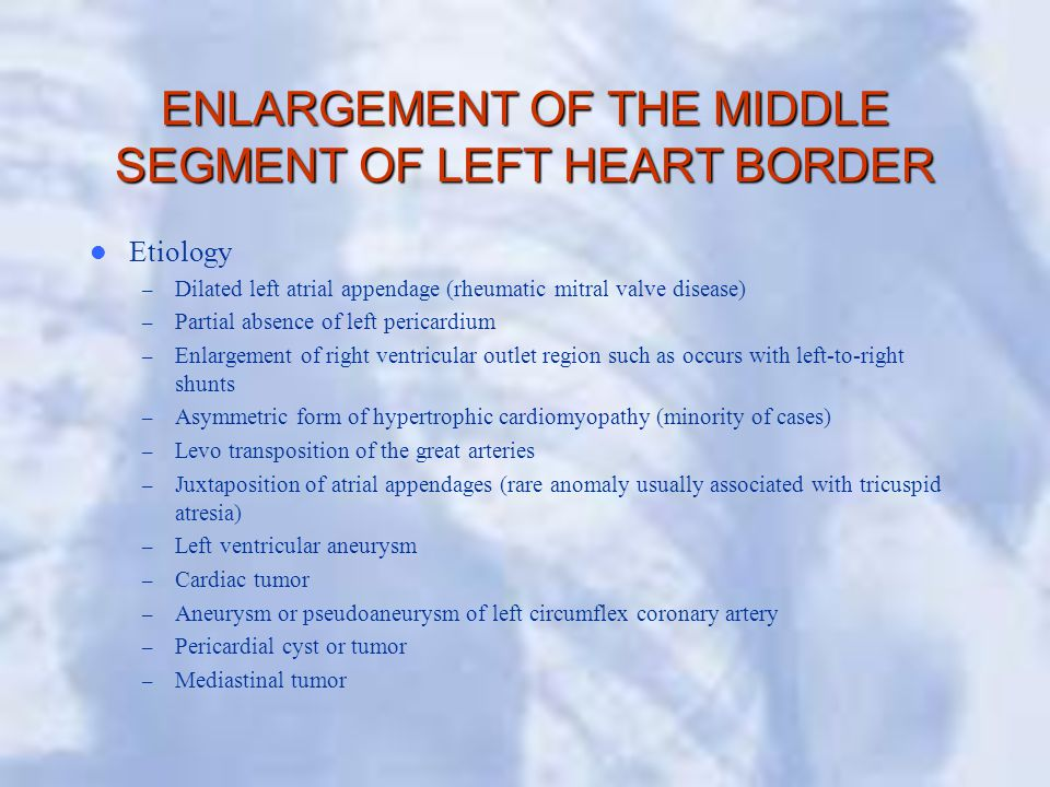 ENLARGEMENT OF THE MIDDLE SEGMENT OF LEFT HEART BORDER