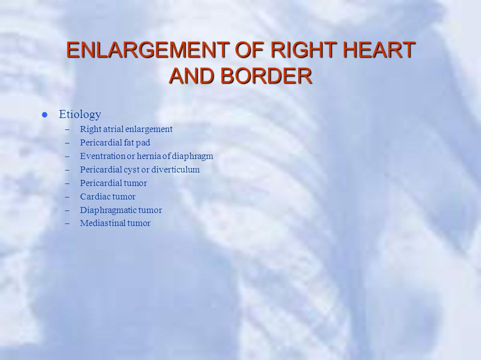 ENLARGEMENT OF RIGHT HEART AND BORDER