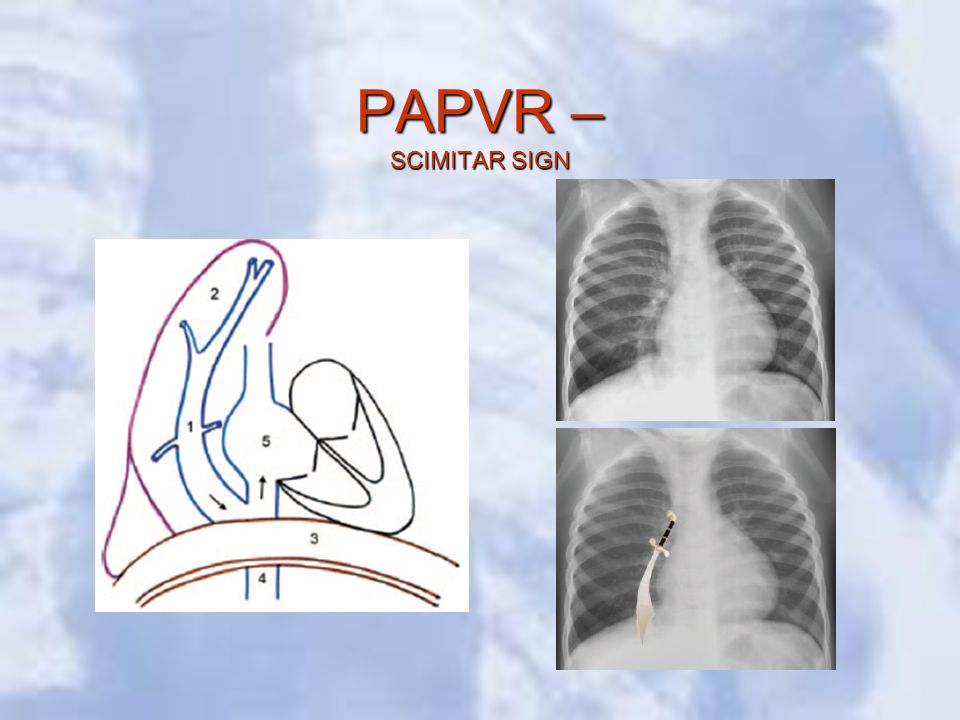 PAPVR – SCIMITAR SIGN