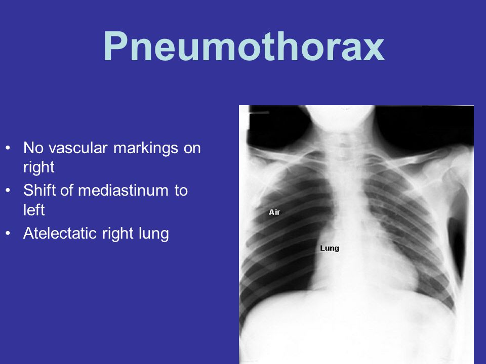 Pneumothorax No vascular markings on right
