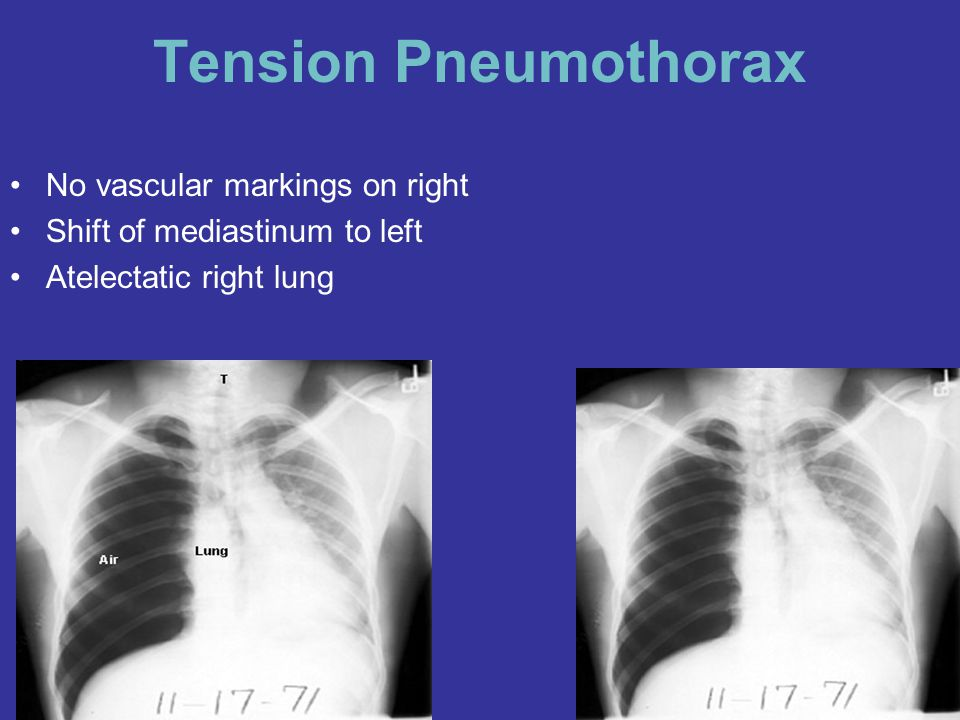 Tension Pneumothorax No vascular markings on right