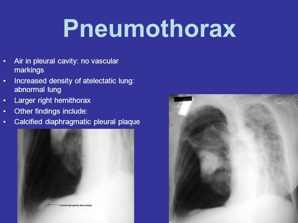Pneumothorax Air in pleural cavity: no vascular markings
