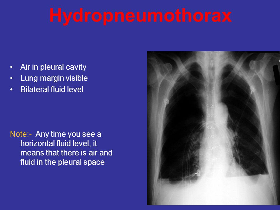 Hydropneumothorax Air in pleural cavity Lung margin visible