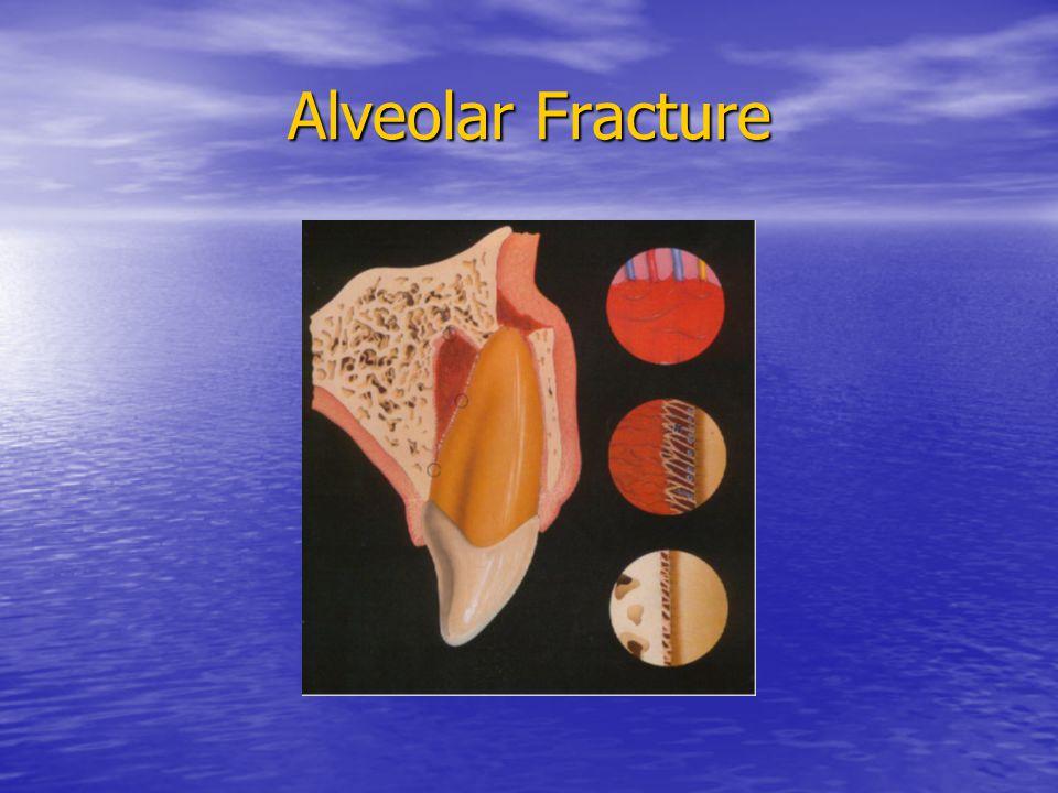 Alveolar Fracture