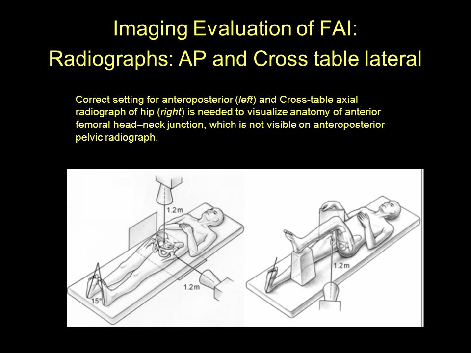 Imaging Evaluation of FAI: Radiographs: AP and Cross table lateral