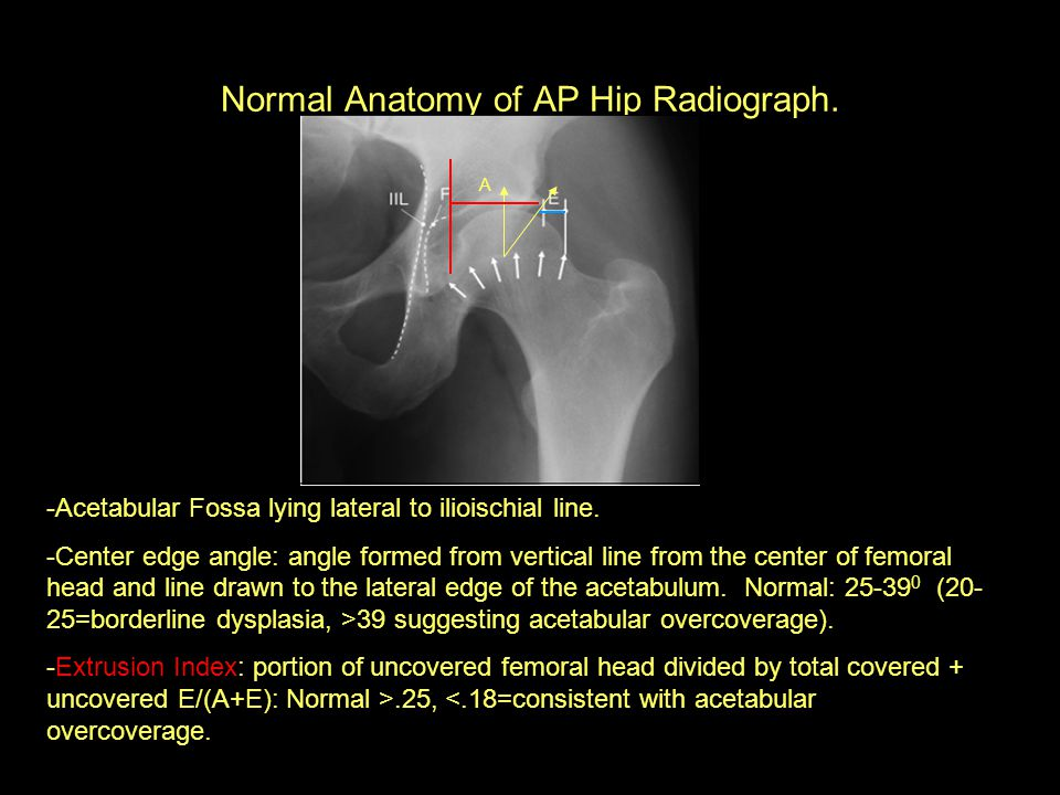 Normal Anatomy of AP Hip Radiograph.