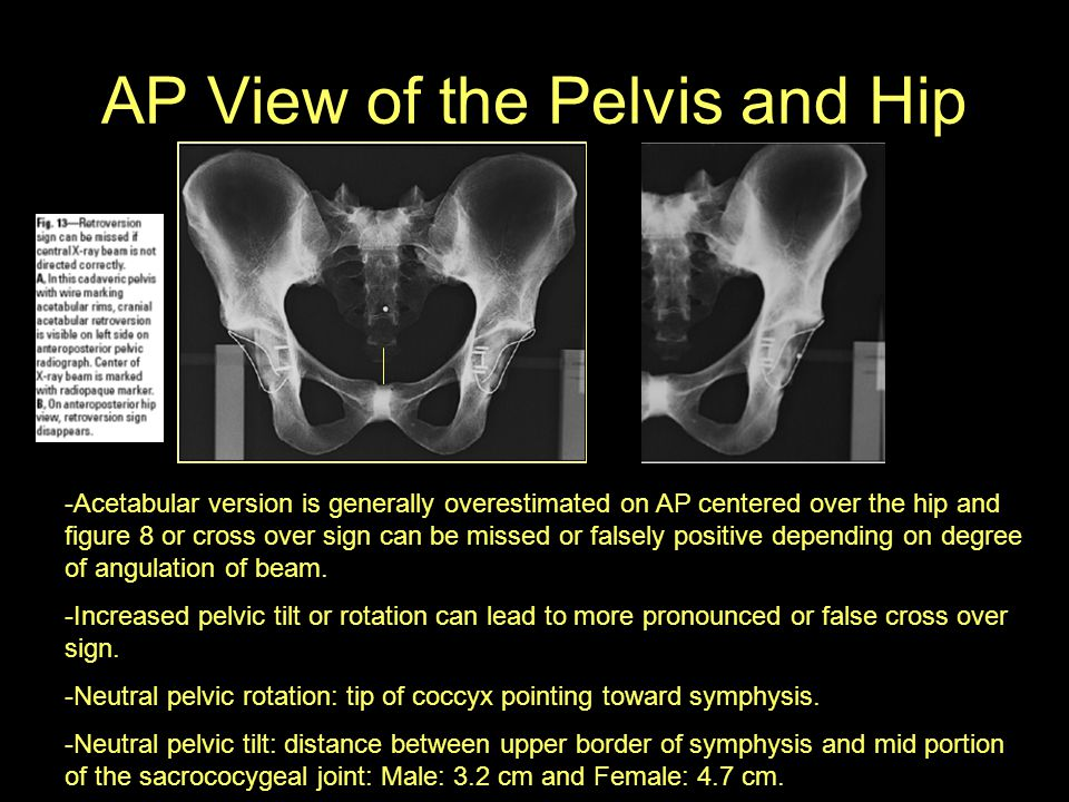 AP View of the Pelvis and Hip