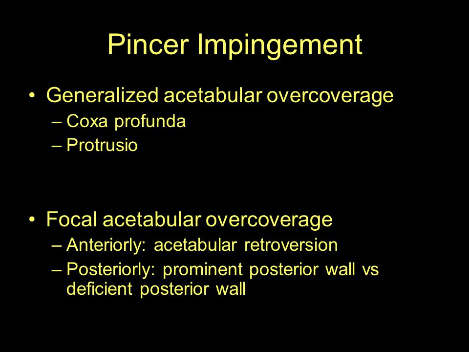 Pincer Impingement Generalized acetabular overcoverage
