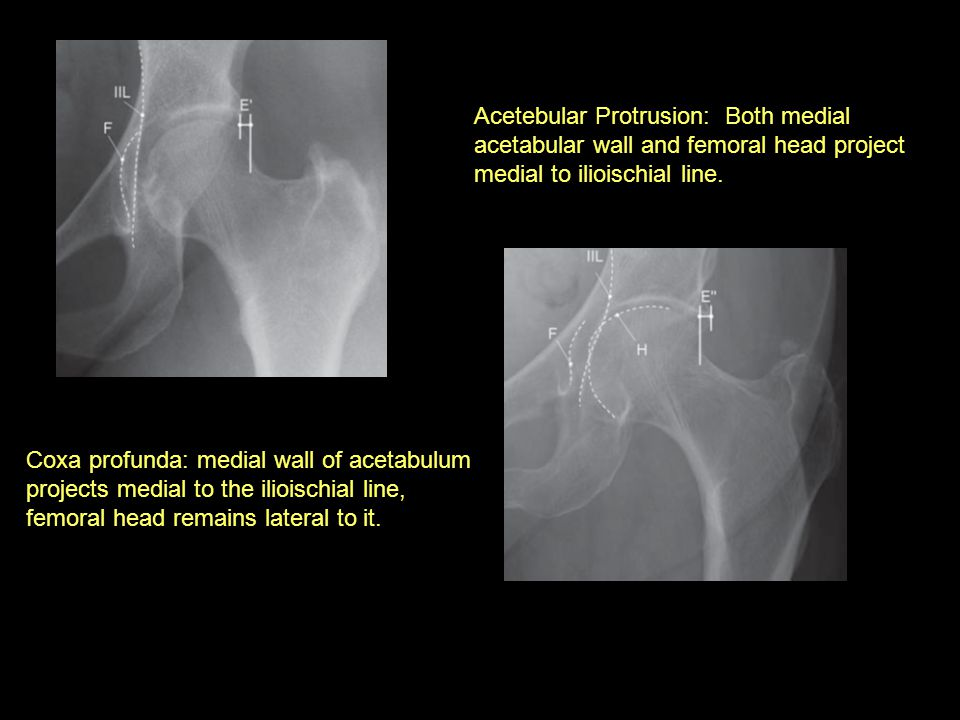 Acetebular Protrusion: Both medial acetabular wall and femoral head project medial to ilioischial line.
