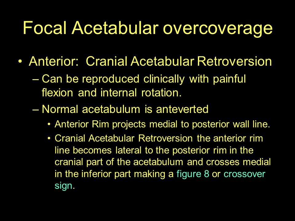 Focal Acetabular overcoverage