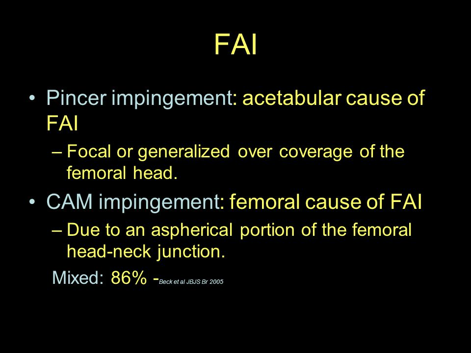 FAI Pincer impingement: acetabular cause of FAI