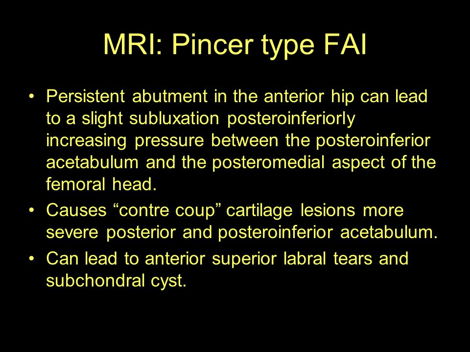 MRI: Pincer type FAI