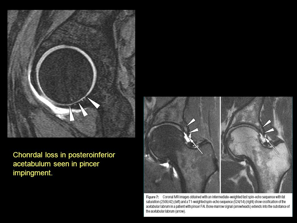 Chonrdal loss in posteroinferior acetabulum seen in pincer impingment.