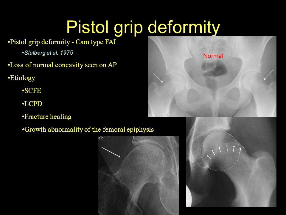 Pistol grip deformity Pistol grip deformity - Cam type FAI