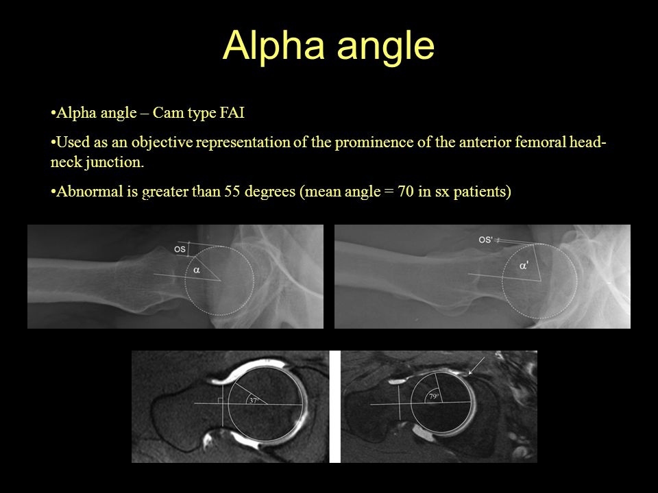 Alpha angle Normal Abnormal Alpha angle – Cam type FAI