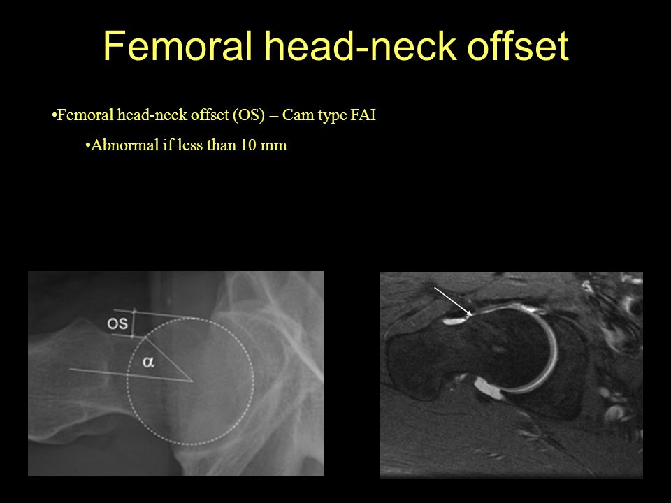 Femoral head-neck offset