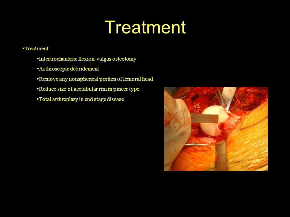 Treatment Treatment Intertrochanteric flexion-valgus osteotomy