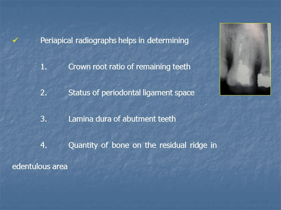 Periapical radiographs helps in determining