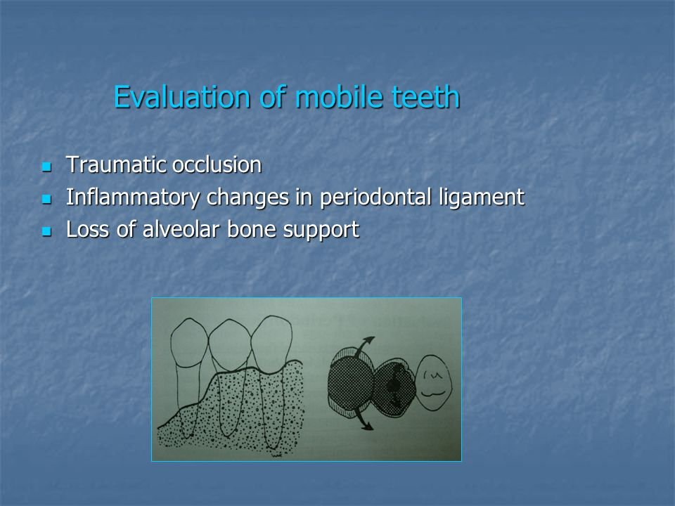 Evaluation of mobile teeth
