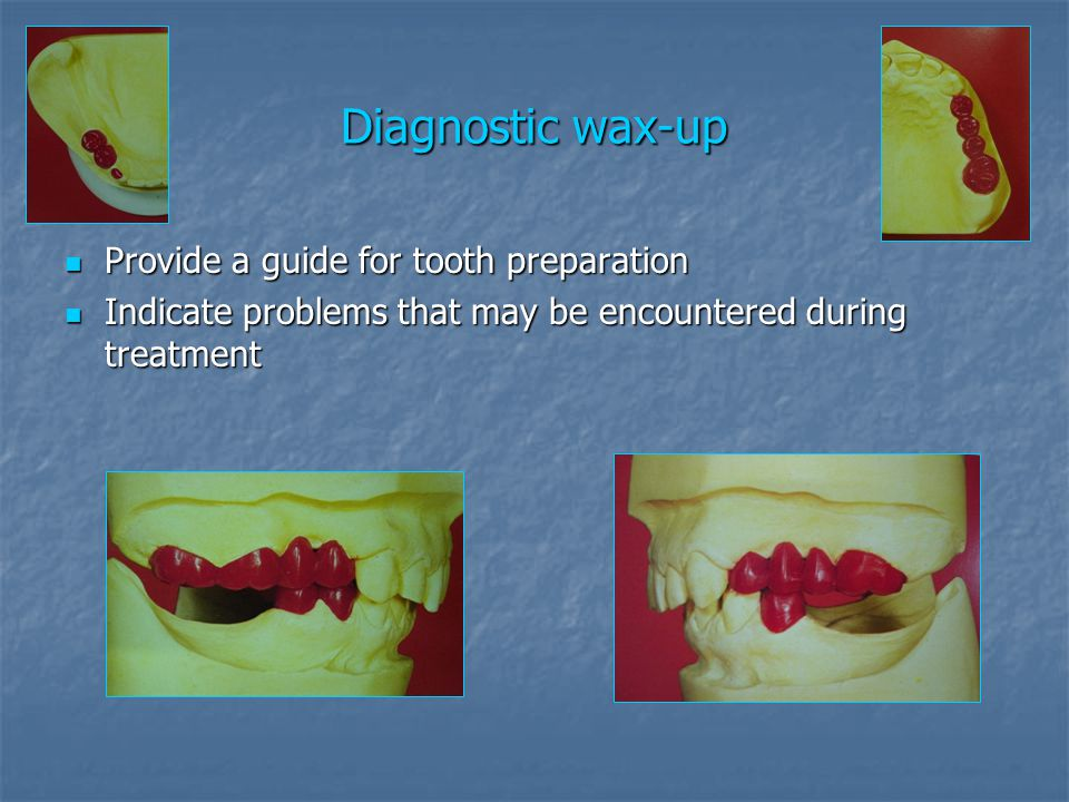 Diagnostic wax-up Provide a guide for tooth preparation