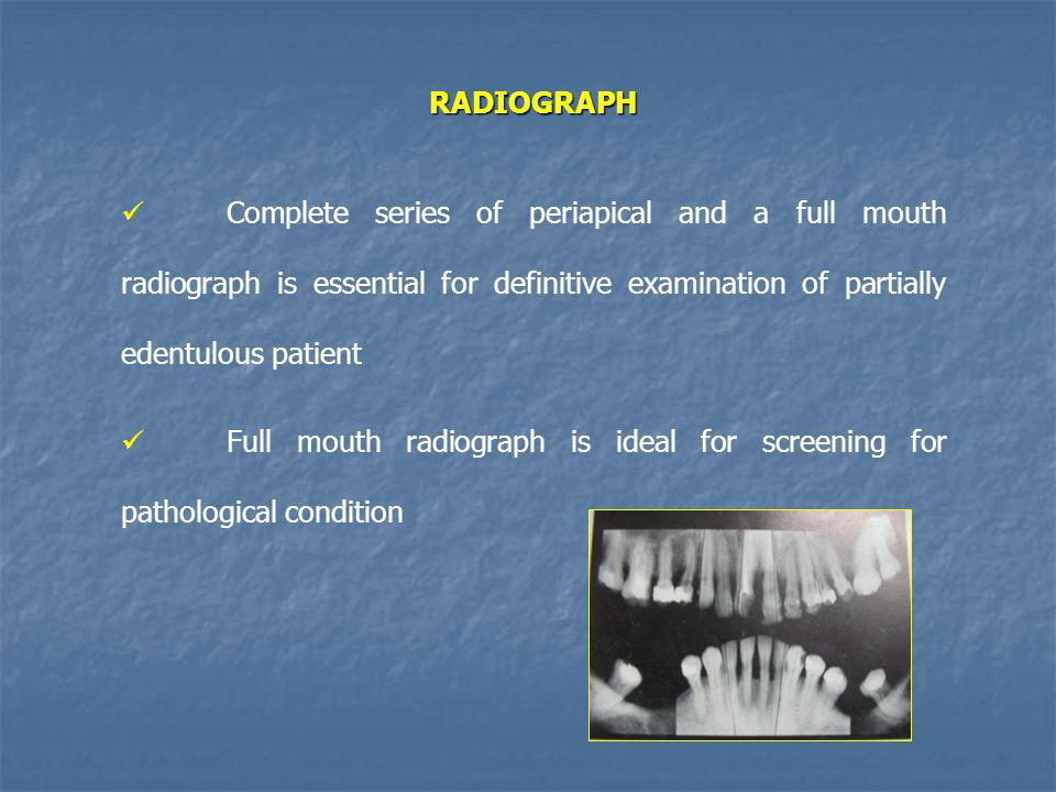 RADIOGRAPH Complete series of periapical and a full mouth radiograph is essential for definitive examination of partially edentulous patient.