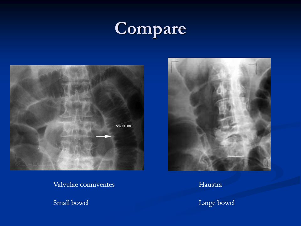 Compare Valvulae conniventes Small bowel Haustra Large bowel