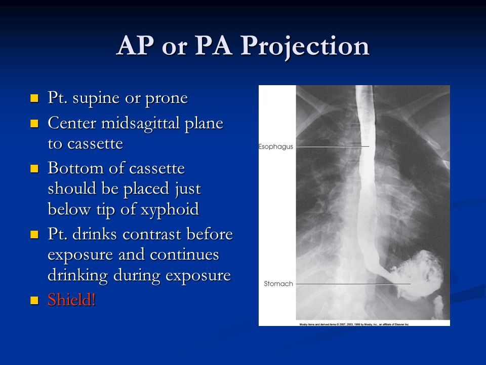 AP or PA Projection Pt. supine or prone