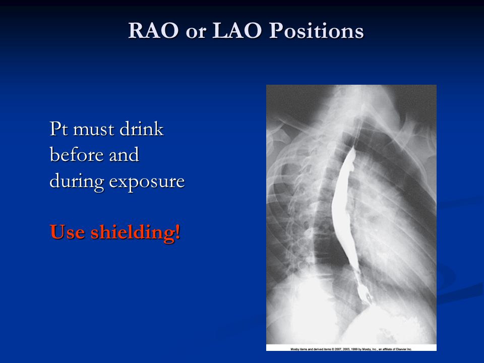 RAO or LAO Positions Pt must drink before and during exposure