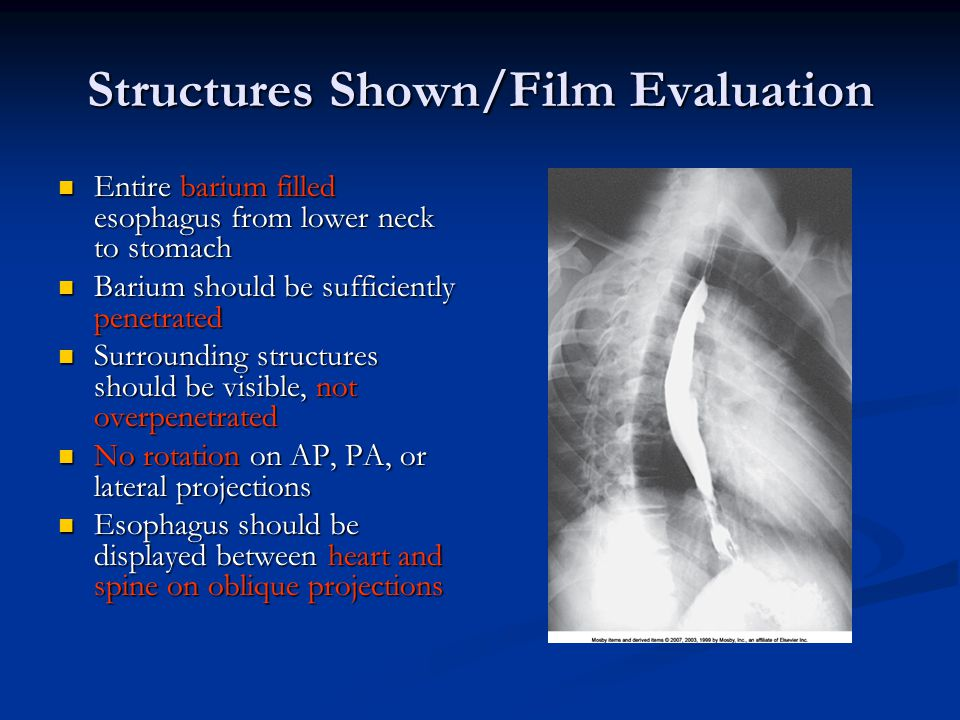 Structures Shown/Film Evaluation