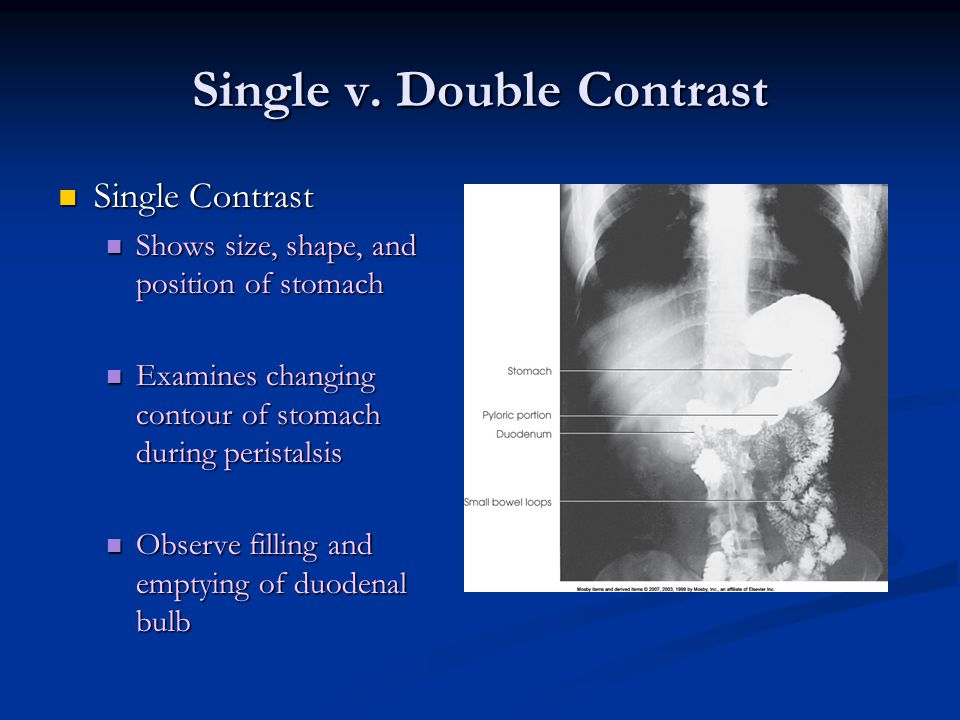 Single v. Double Contrast