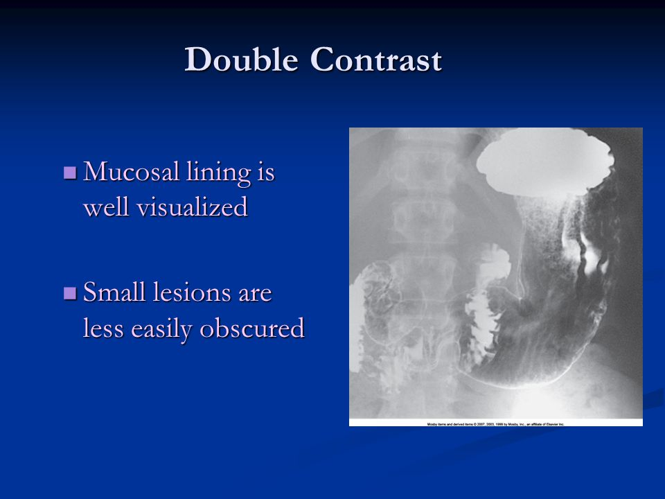 Double Contrast Mucosal lining is well visualized