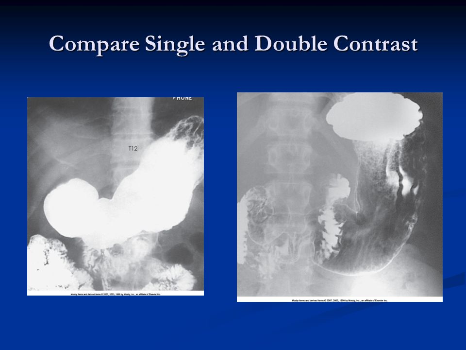 Compare Single and Double Contrast