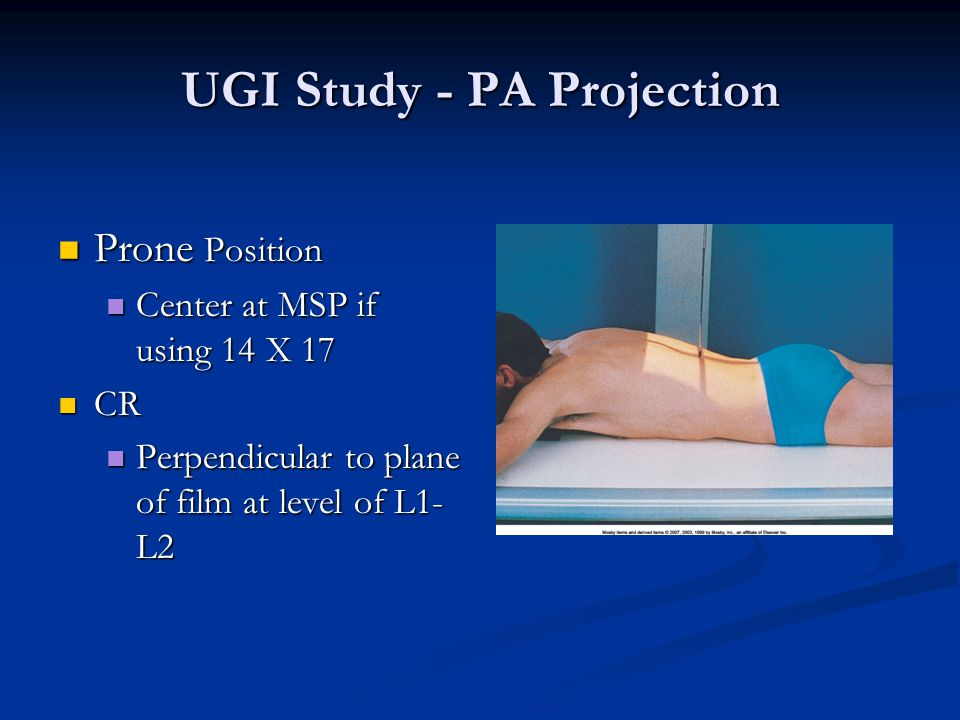 UGI Study - PA Projection
