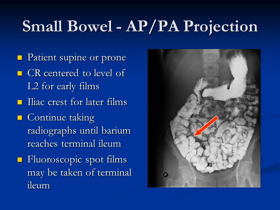 Small Bowel - AP/PA Projection