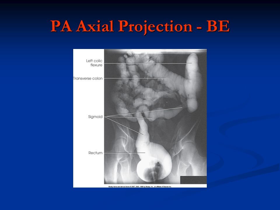 PA Axial Projection - BE