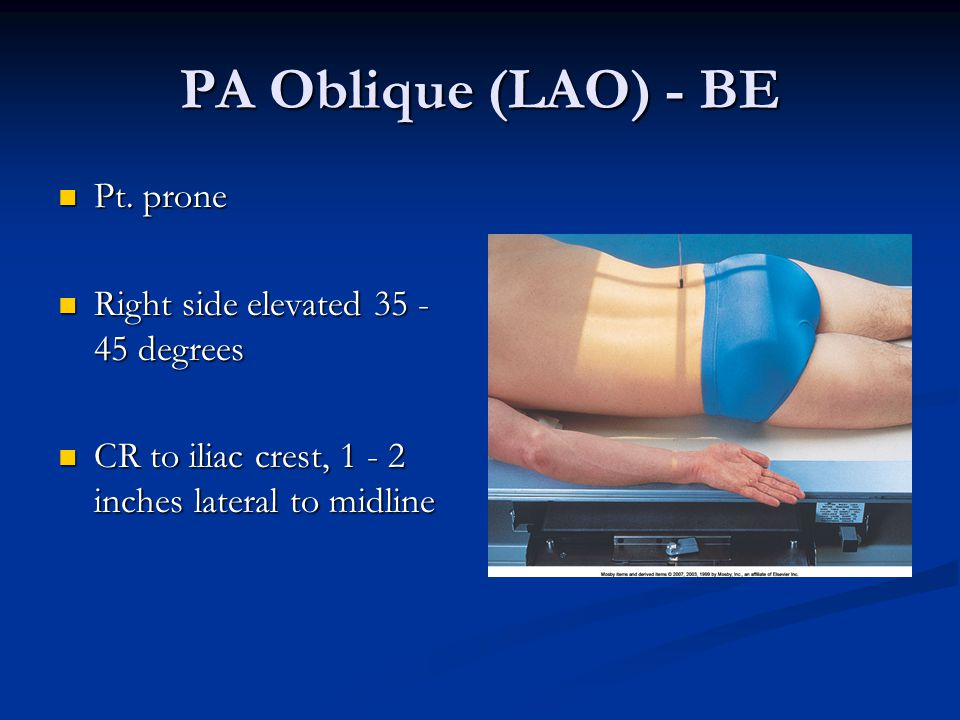 PA Oblique (LAO) - BE Pt. prone Right side elevated 35 - 45 degrees