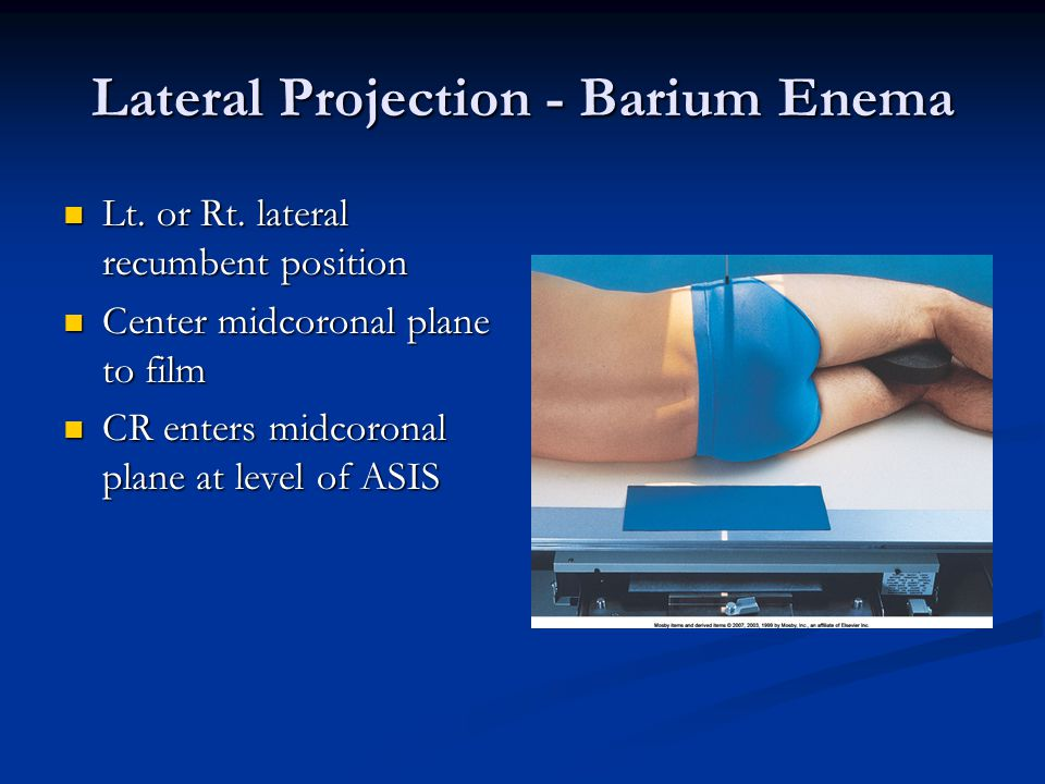 Lateral Projection - Barium Enema