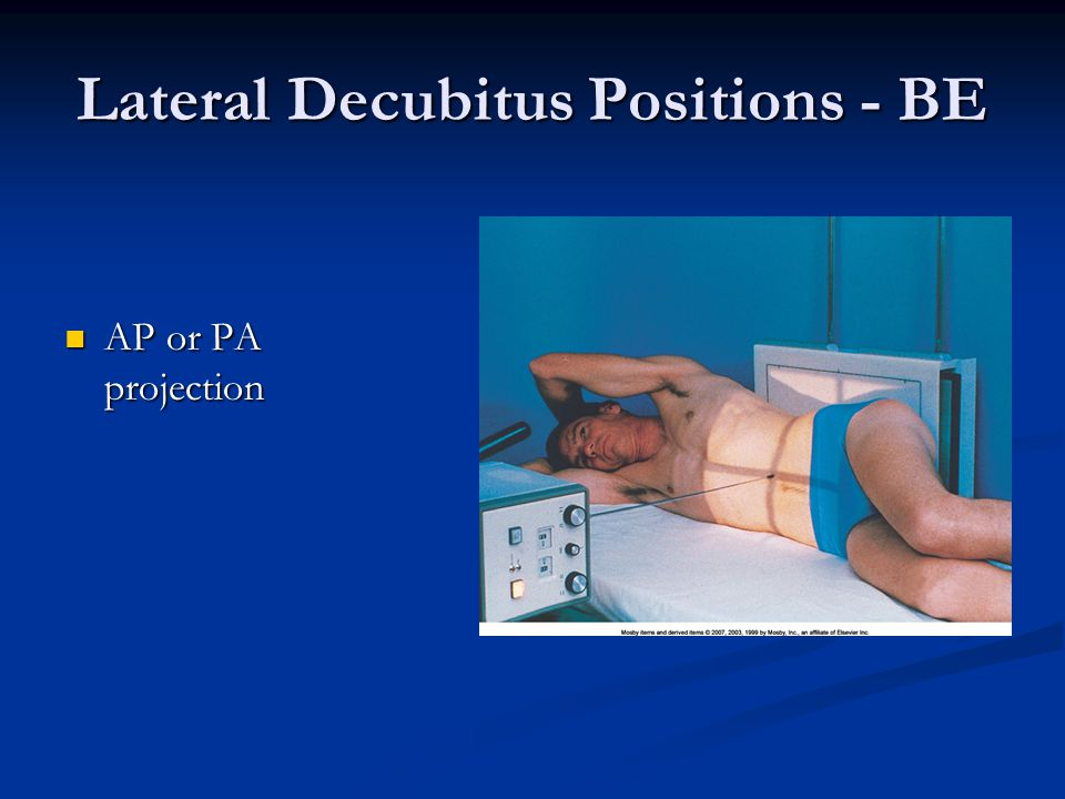 Lateral Decubitus Positions - BE