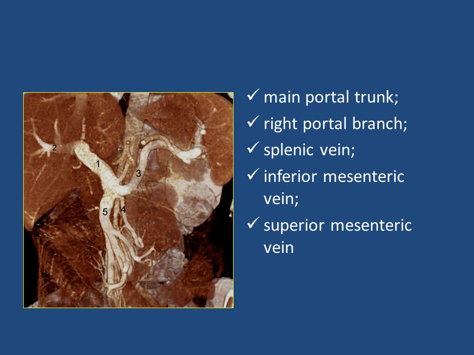 main portal trunk; right portal branch; splenic vein; inferior mesenteric vein; superior mesenteric vein.