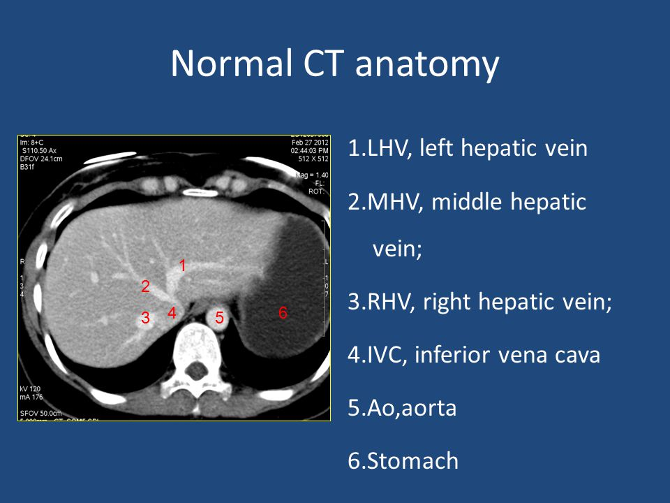 Normal CT anatomy 1.LHV, left hepatic vein 2.MHV, middle hepatic vein; 3.RHV, right hepatic vein; 4.IVC, inferior vena cava 5.Ao,aorta 6.Stomach